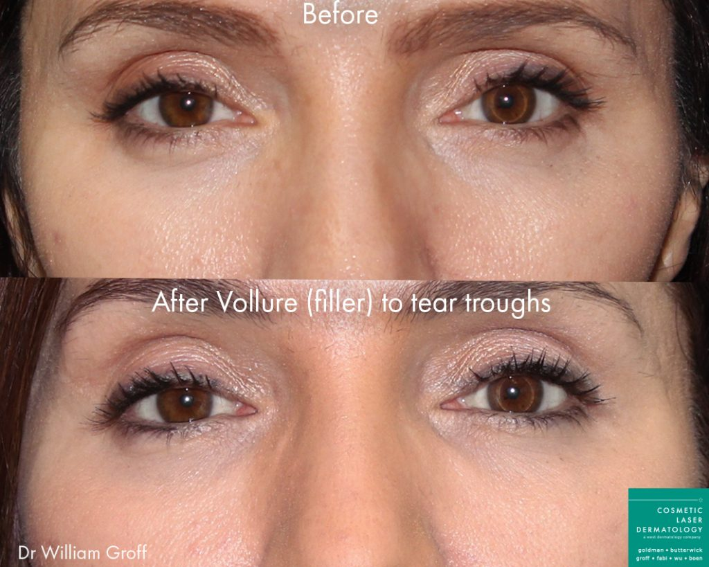 Vollure filler into tear troughs to rejuvenate under-eye area by Dr. Groff. Disclaimer: Results may vary from patient to patient. Results are not guaranteed.