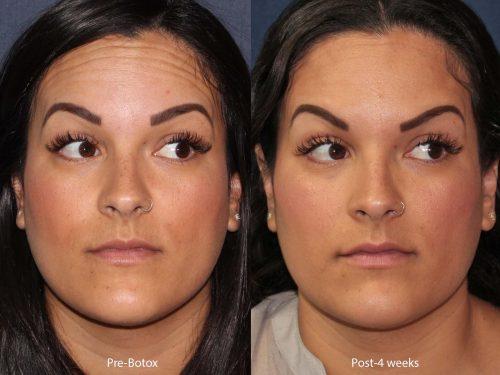 botox wrinkle treatment in san diego, ca