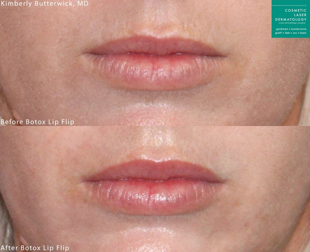 Botox lip flip to augment and lift the lip by Dr. Butterwick. Disclaimer: Results may vary from patient to patient. Results are not guaranteed.