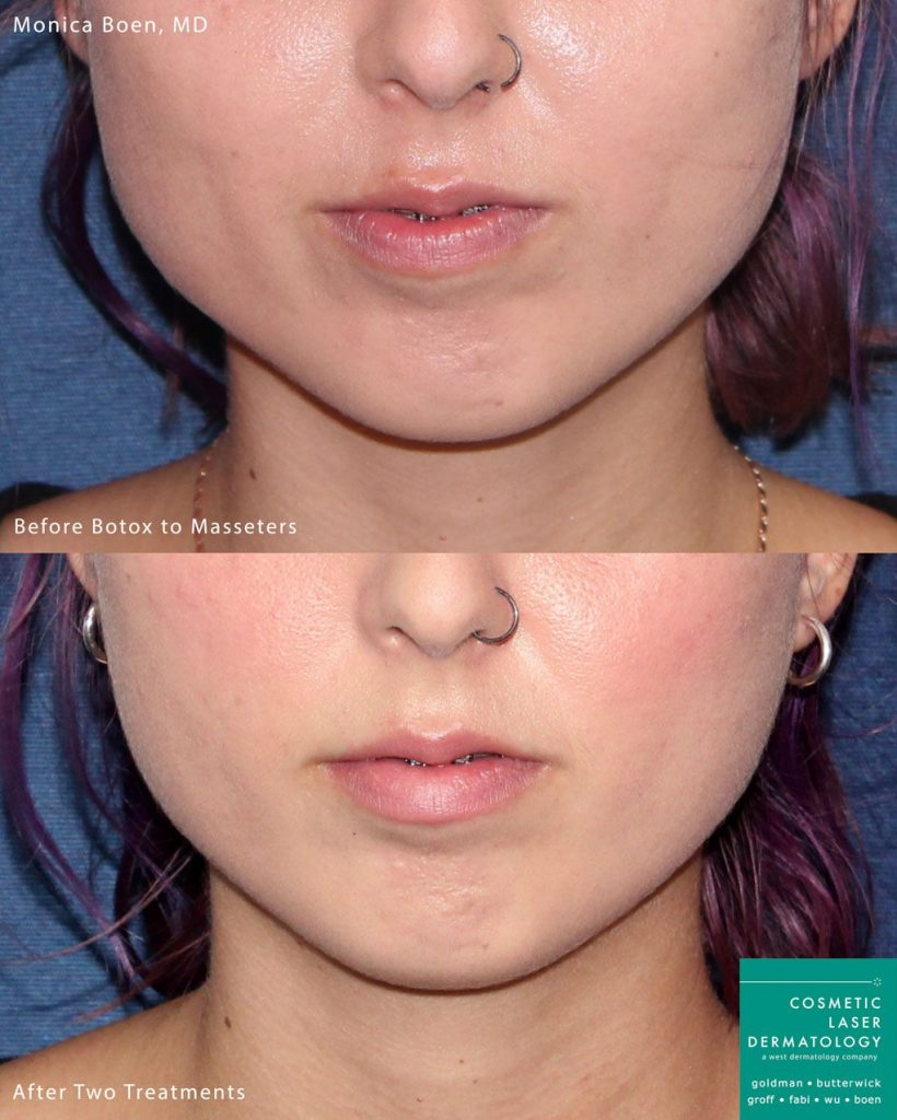 Botox injected into the masseter muscle to slim the jawline by Dr. Boen. Disclaimer: Results may vary from patient to patient. Results are not guaranteed.