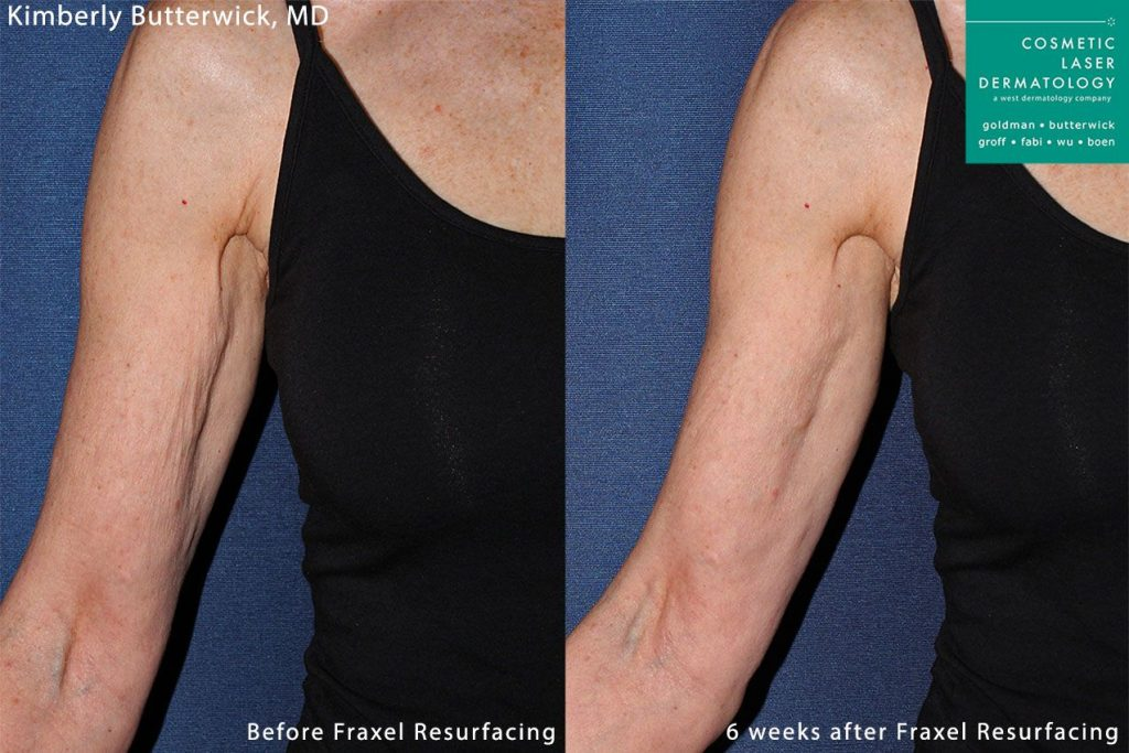 Fraxel and Radiesse to rejuvenate upper arm by Dr. Butterwick. Disclaimer: Results may vary from patient to patient. Results are not guaranteed.