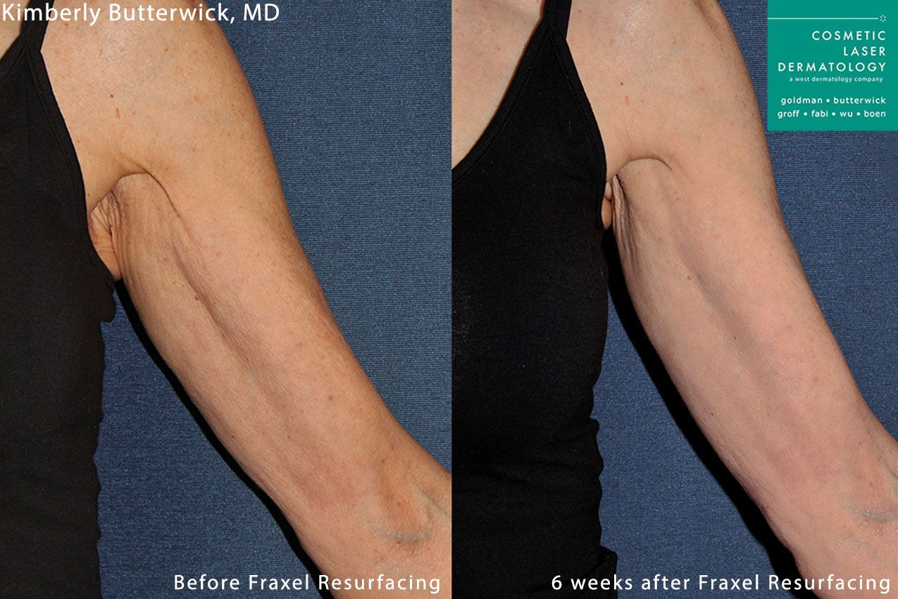 Fraxel and Radiesse to rejuvenate the upper arm by Dr. Butterwick. Treatments leave skin firmer and less crepey.