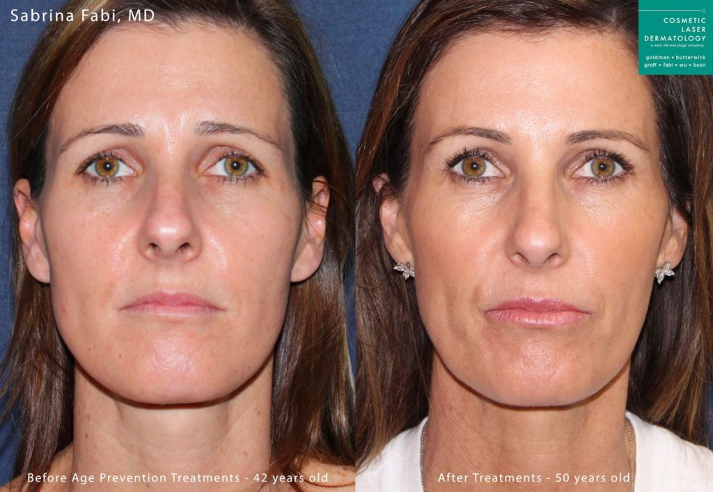 IPL and injectables to rejuvenate the face by Dr. Fabi. Disclaimer: Results may vary from patient to patient. Results are not guaranteed.