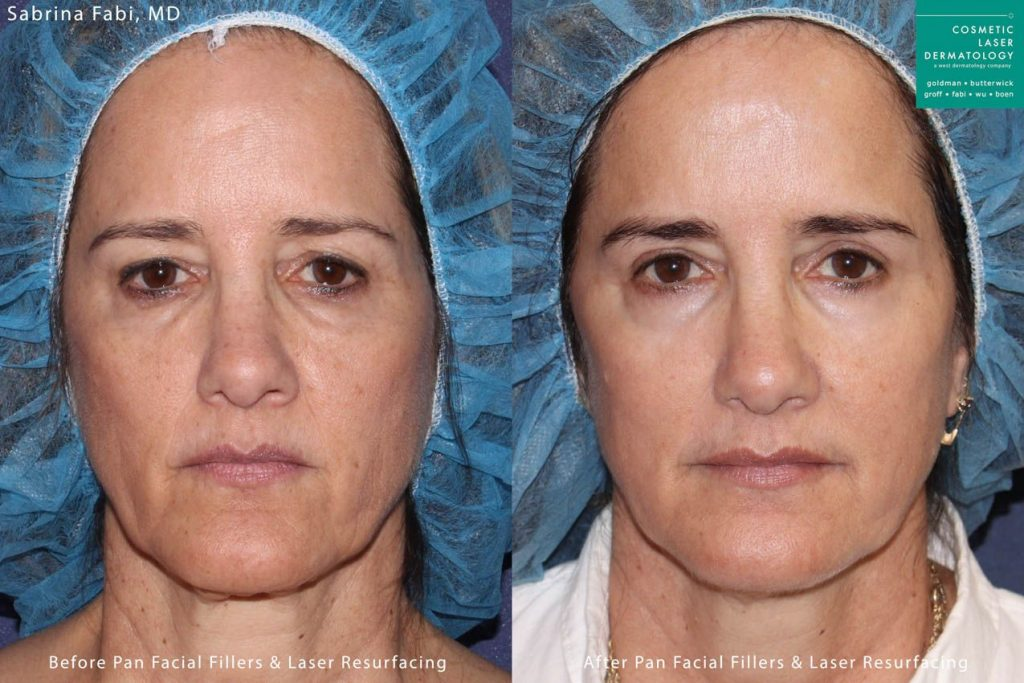 Laser resurfacing and filler injections for rejuvenation by Dr. Fabi. Disclaimer: Results may vary from patient to patient. Results are not guaranteed.