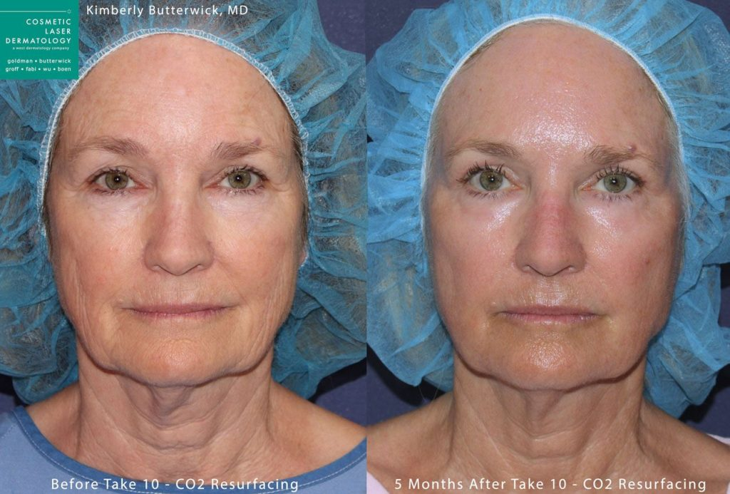 Laser resurfacing for skin rejuvenation by Dr. Butterwick. Disclaimer: Results may vary from patient to patient. Results are not guaranteed.