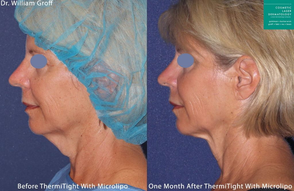 Micro-lipo and ThermiTight for contouring the neck and chin by Dr. Groff. Disclaimer: Results may vary from patient to patient. Results are not guaranteed.