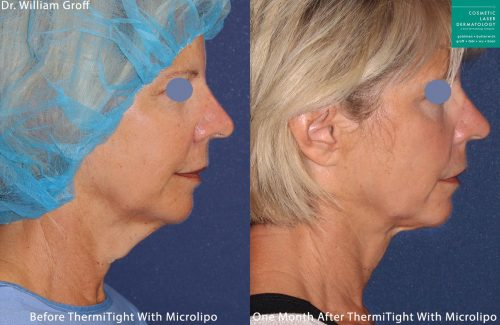 Micro-lipo and ThermiTight for neck and chin contouring by Dr. Groff. After procedure, submental fat and turkey neck are gone and jaw is more defined.