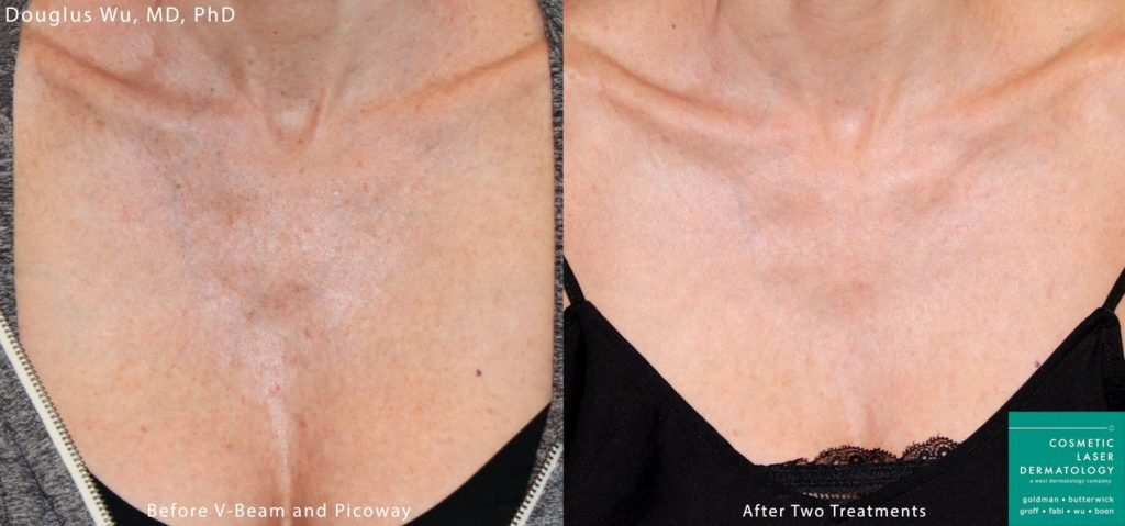 PicoWay laser to treat sun damage and brown spots on the chest by Dr. Wu. Disclaimer: Results may vary from patient to patient. Results are not guaranteed.