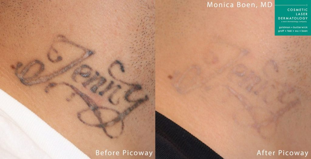 PicoWay laser to remove a tatto on the neck by Dr. Boen. Disclaimer: Results may vary from patient to patient. Results are not guaranteed.