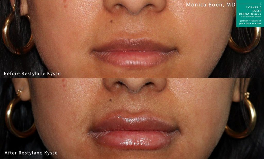 Restylane Kysse to plump up the lips by Dr. Boen. Disclaimer: Results may vary from patient to patient. Results are not guaranteed.