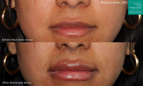 Restylane Kysse to plump up the lips by Dr. Boen. After injections, lips are fuller and more shapely.