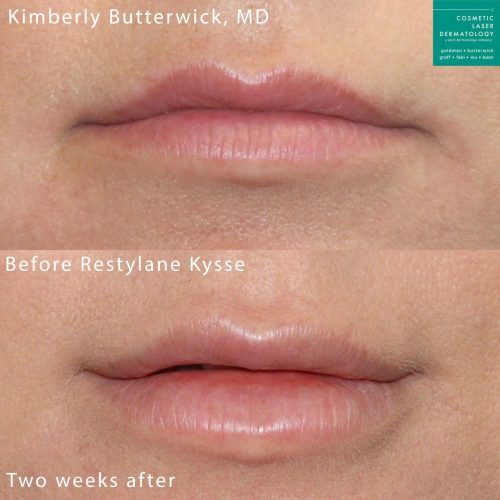 Restylane Kysse to augment the lips by Dr. Butterwick. Treatment creates fuller, shapelier lips.