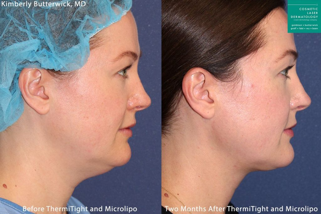 ThermiTight and micro-lipo used to contour the chin by Dr. Butterwick. Disclaimer: Results may vary from patient to patient. Results are not guaranteed.