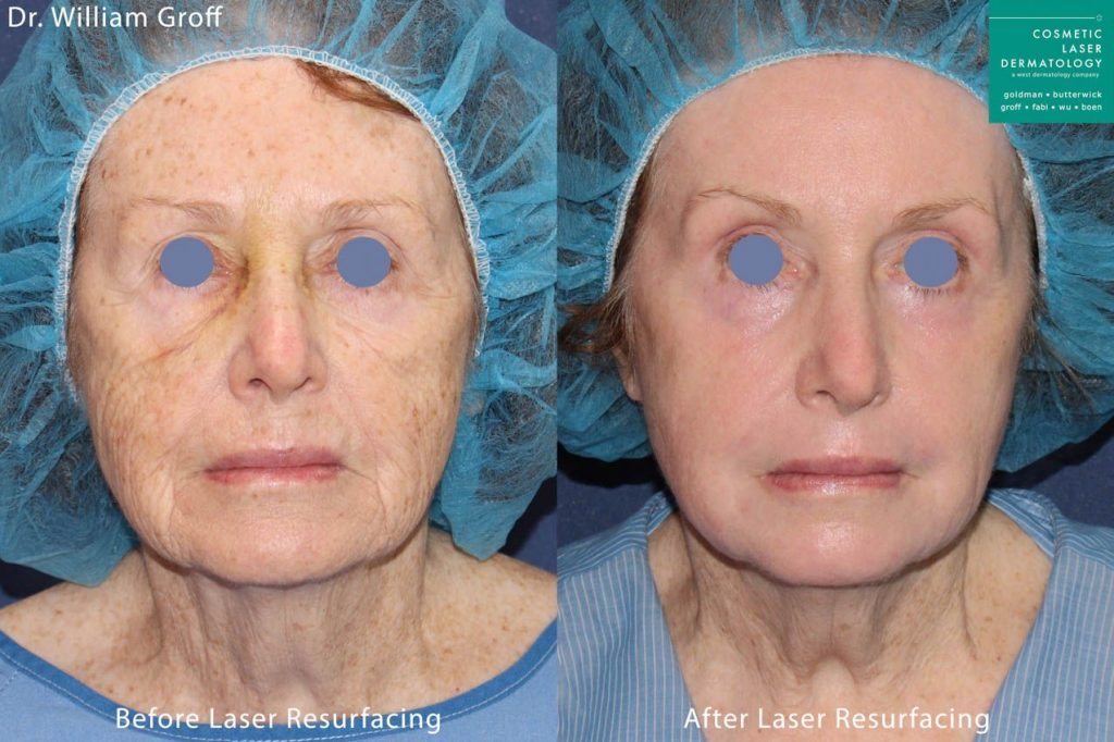 Vbeam, Alexandrite and UltraPulse CO2 lasers for Take 10 procedure by Dr. Groff. Disclaimer: Results may vary from patient to patient. Results are not guaranteed.