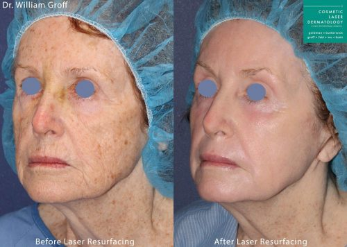 Vbeam, Alexandrite and UltraPulse CO2 lasers for Take 10 procedure by Dr. Groff. Treatment removes brown spots and wrinkles for a much younger appearance.