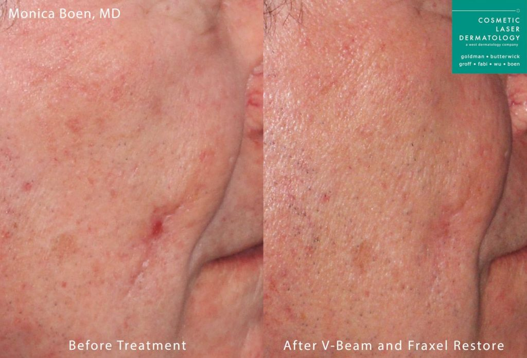 Fraxel Restore and Vbeam to treat skin redness and rejuvenate the skin by Dr. Boen. Disclaimer: Results may vary from patient to patient. Results are not guaranteed.