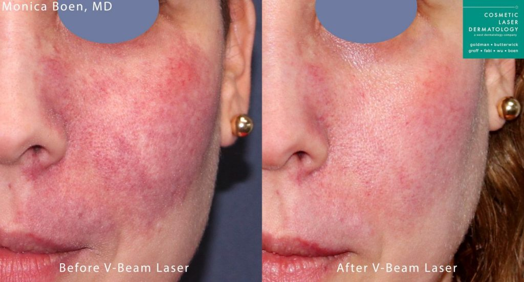 Vbeam to treat port wine stain by Dr. Boen. Disclaimer: Results may vary from patient to patient. Results are not guaranteed.