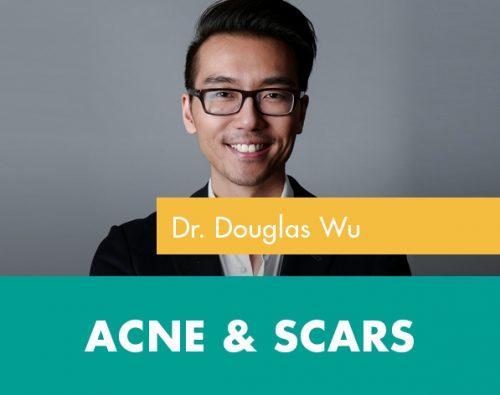 acne scar treatment in san diego, ca