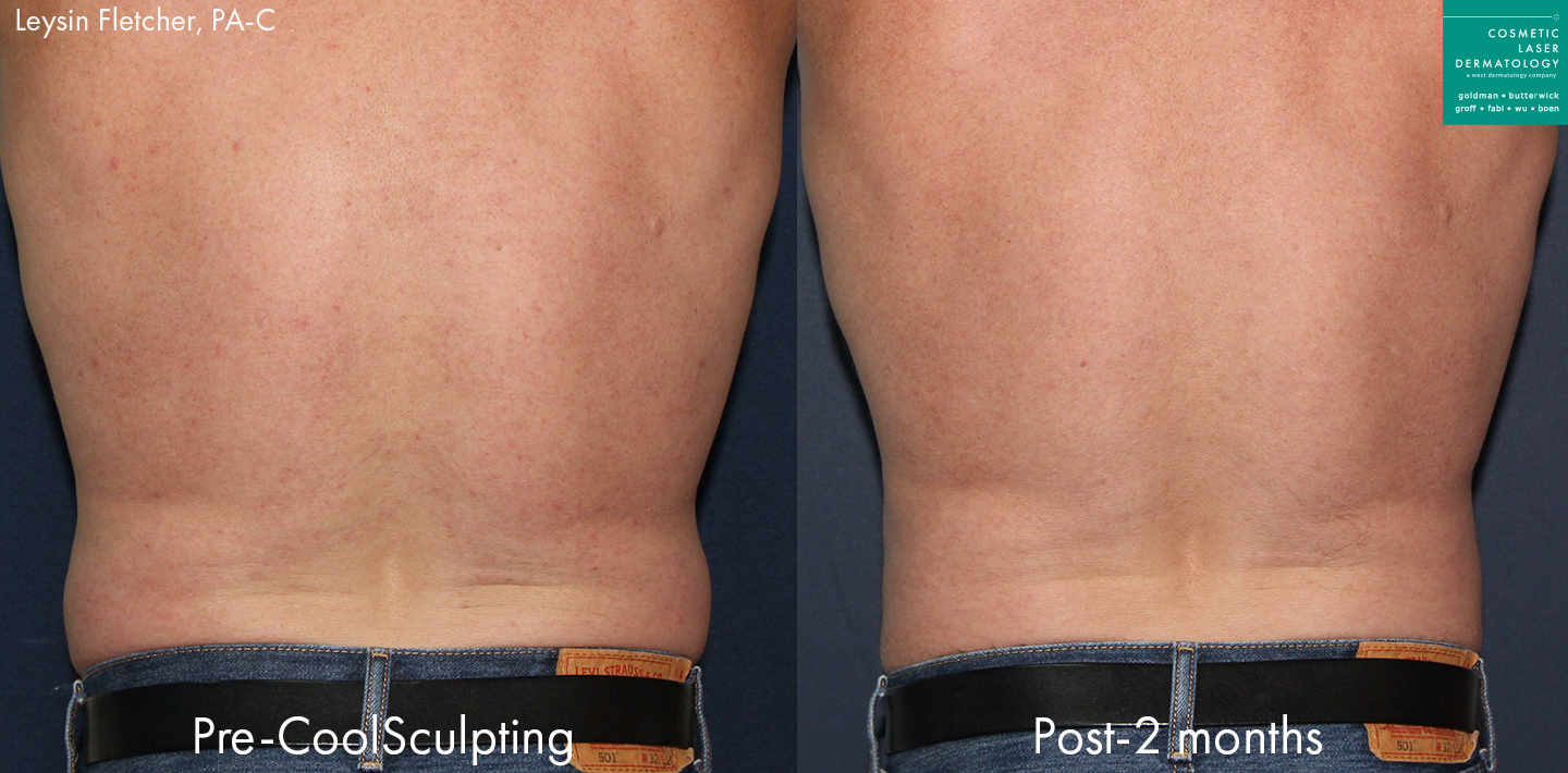 coolsculpting body contouring in san diego, ca