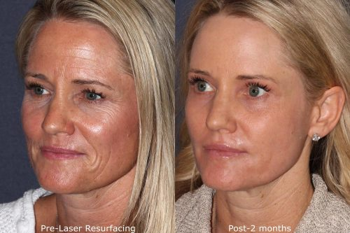 before and after of a patient who underwent laser dermatology resurfacing in san diego, ca
