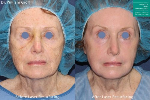 laser resurfacing before and after in san diego, ca