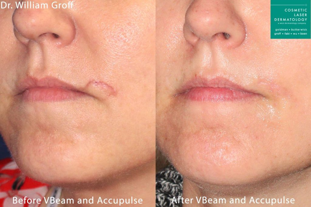 Aculpulse CO2 and Vbeam laser used to remove scar above mouth by Dr. Groff. Disclaimer: Results may vary from patient to patient. Results are not guaranteed.