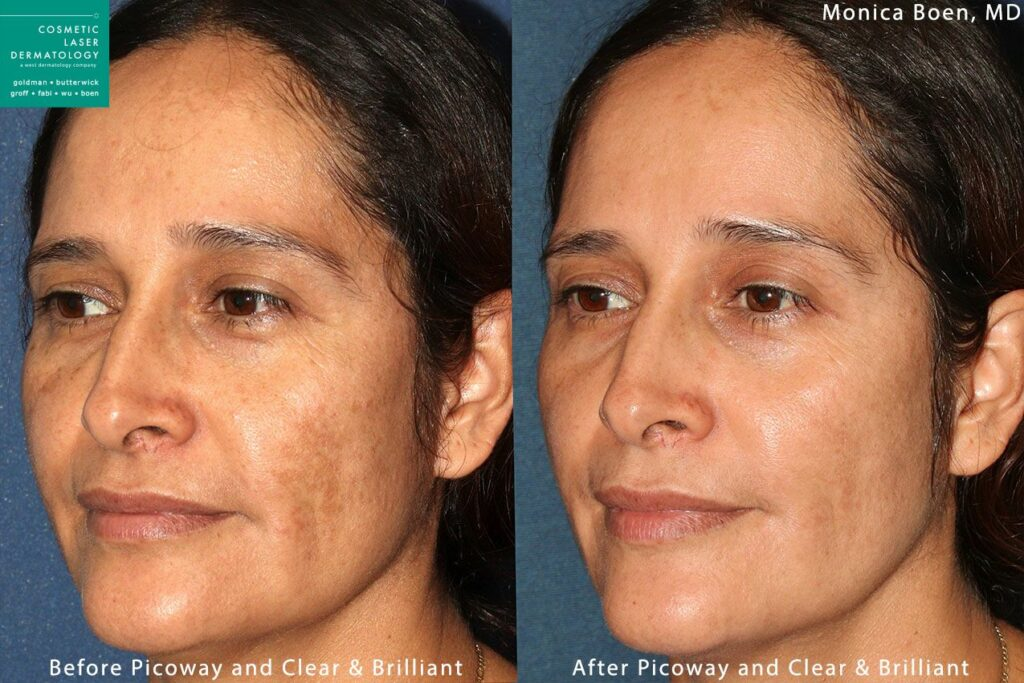 PicoWay and Clear + Brilliant lasers to treat brown spots by Dr. Boen. Disclaimer: Results may vary from patient to patient. Results are not guaranteed.
