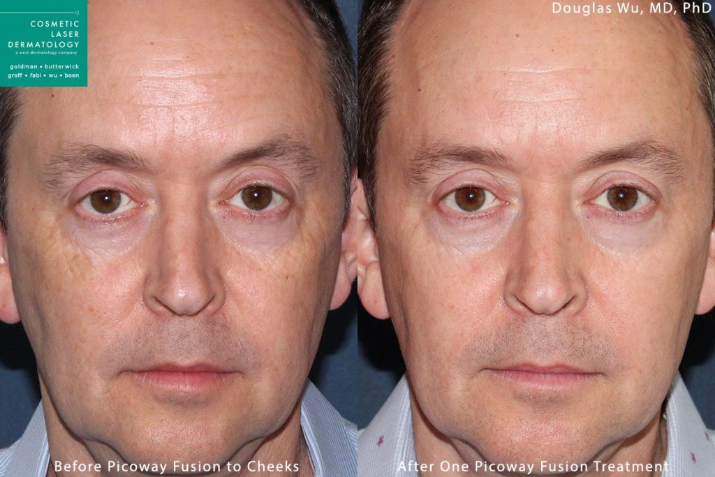 PicoWay laser used to treat sun damage and sun spots by Dr. Wu. Disclaimer: Results may vary from patient to patient. Results are not guaranteed.