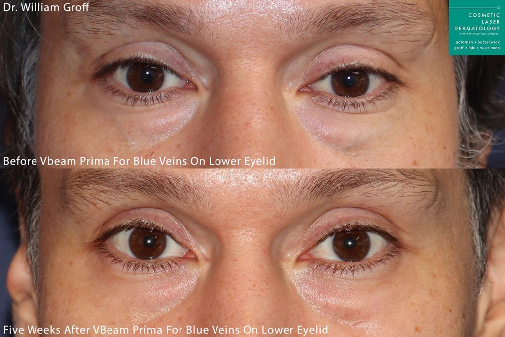 Vbeam Prima to treat reticular veins under the eyes by Dr. Groff. Disclaimer: Results may vary from patient to patient. Results are not guaranteed.