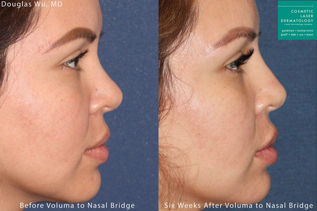 Voluma used to enhance nasal bridge by Dr. Wu. Disclaimer: Results may vary from patient to patient. Results are not guaranteed.