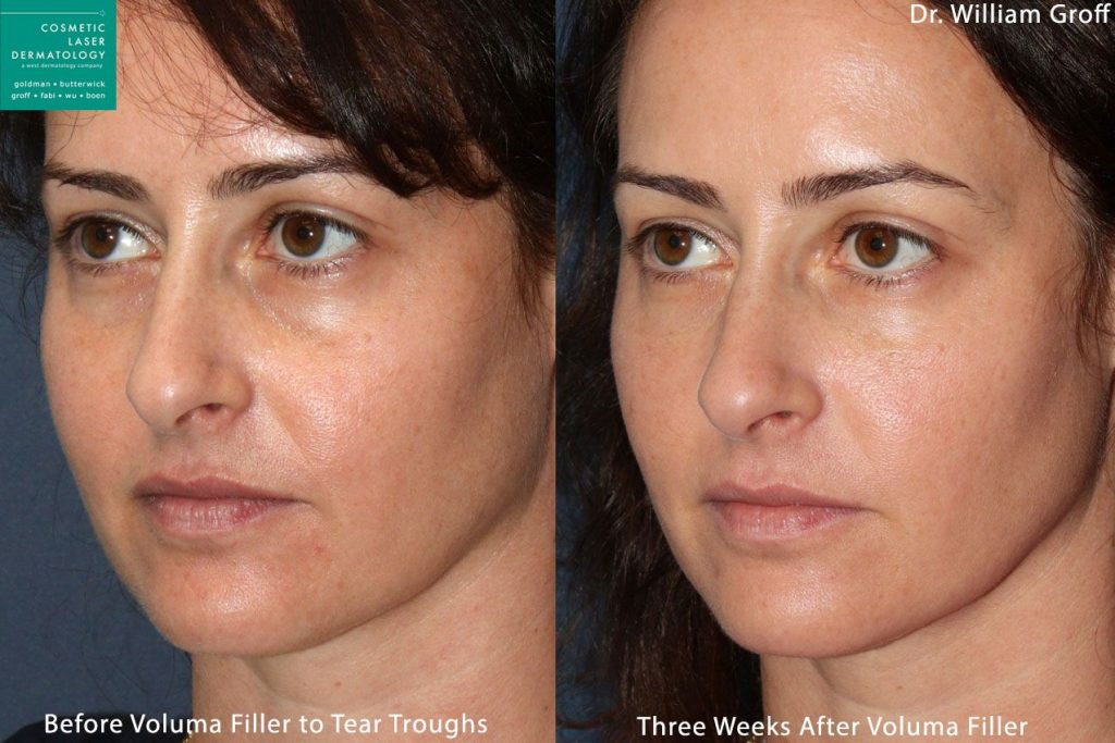 Voluma in tear troughs to rejuvenate eyes by Dr. Groff. Disclaimer: Results may vary from patient to patient. Results are not guaranteed.