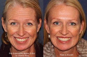 botox wrinkle treatment before and after in san diego, ca