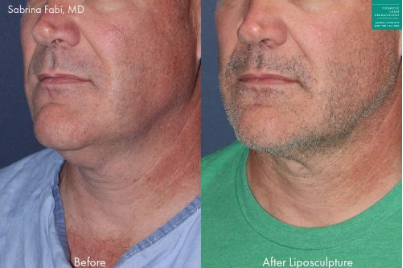 Neck liposuction to remove submental fat from a male patient by Dr. Fabi.