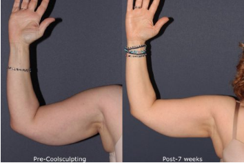 Before and after front image of CoolSculpting treatment on a female's arms performed by Dr. Goldman at our San Diego medi spa