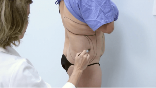 liposculpture body contouring in san diego, ca