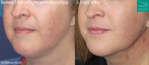liposuction facial contouring in san diego, ca