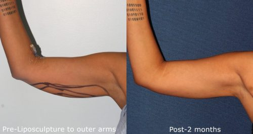 Liposculpture Treatment Arm San Diego