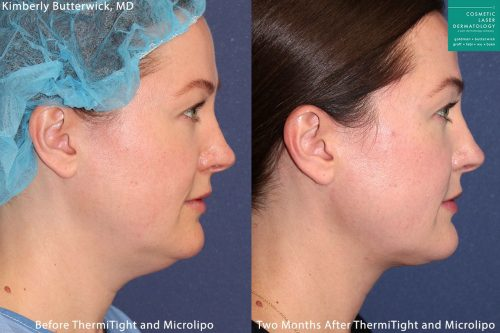 Micro-lipo and ThermiTight for neck and chin contouring by Dr. Butterwick. After procedure, submental is gone and jaw is more defined.