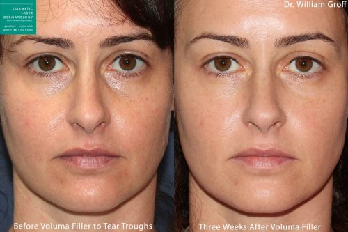 Voluma in tear troughs to rejuvenate eyes by Dr. Groff. After treatment, discoloration and puffiness is reduces and eyes look refreshed.