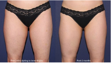 Before and after front image of CoolSculpting treatment on a female's thighs performed by Leysin Fletcher, PA-C, at our San Diego medical spa
