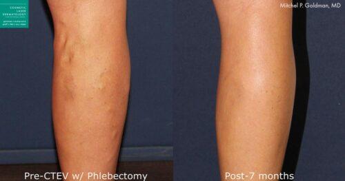 Ambulatory Phlebectomy Treatmentin San Diego, CA