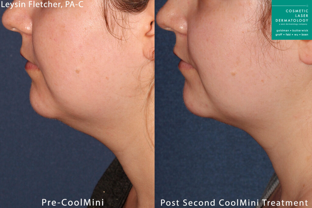 CoolMini to treat submental fat under the chin by Leysin Fletcher, PA-C. Disclaimer: Results may vary from patient to patient. Results are not guaranteed.