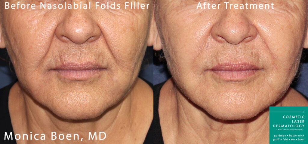 Dermal filler to treat nasolabial folds by Dr. Boen. Disclaimer: Results may vary from patient to patient. Results are not guaranteed.