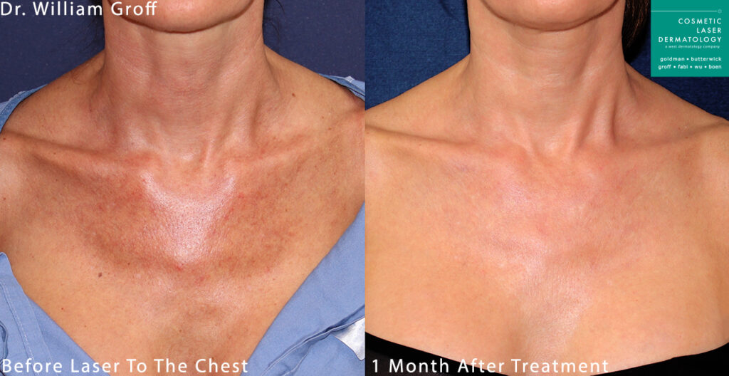 Laser treatment to remove sun damage from chest by Dr. Groff. Disclaimer: Results may vary from patient to patient. Results are not guaranteed.