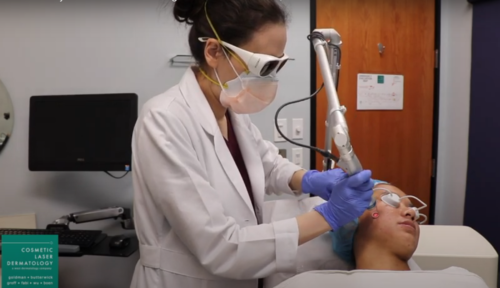 Dramatically Reduce Acne Scarring With This 20-Minute, Non-Invasive Treatment!