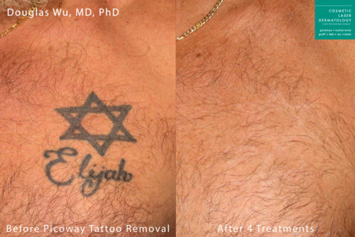 PicoWay laser used to remove a tattoo on the chest by Dr. Wu. After a series of treatments, ink is nearly completely eliminated.