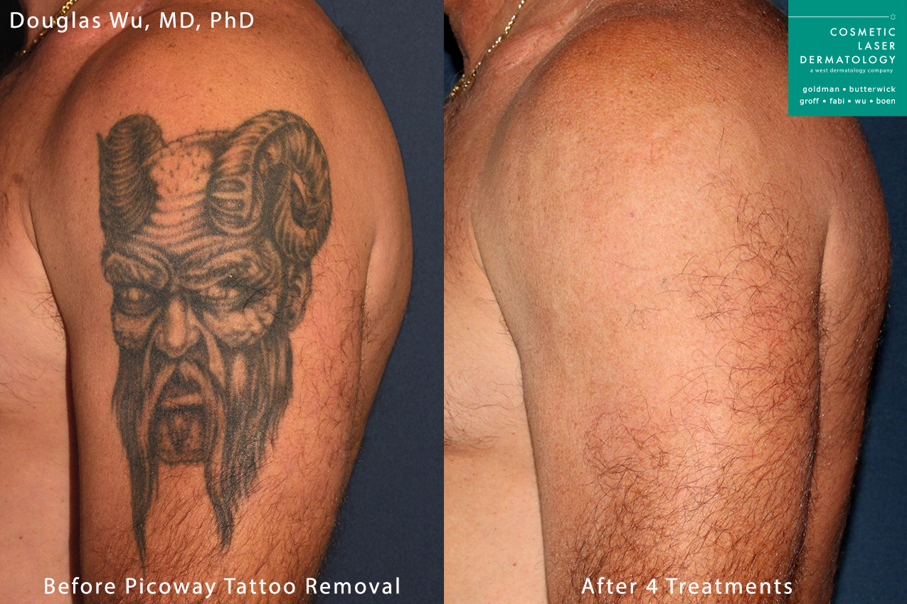 PicoWay laser used to remove a tattoo on the upper arm by Dr. Wu. After a series of treatments, ink is nearly completely eliminated.
