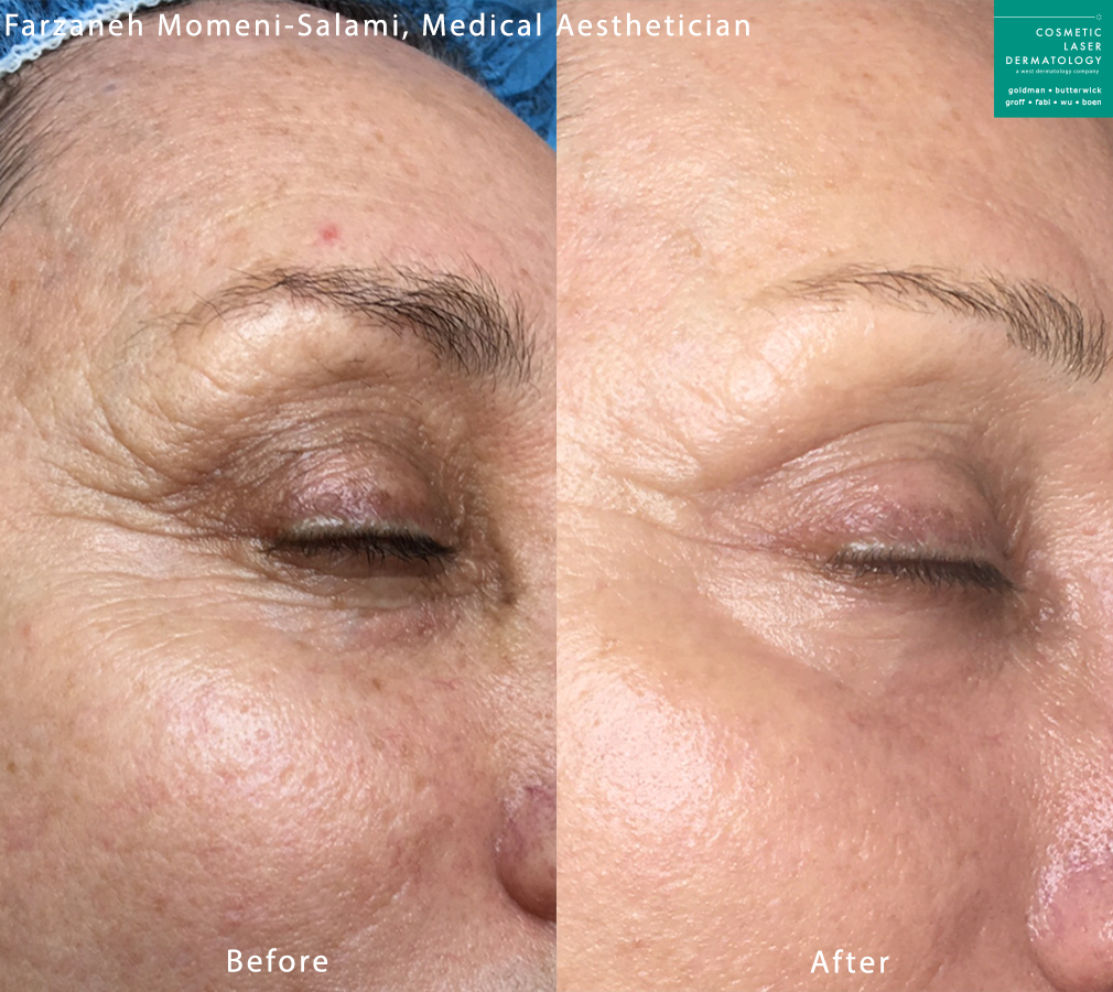 Microneedling to rejuvenate area around eyes by Farzaneh. Disclaimer: Results may vary from patient to patient. Results are not guaranteed.