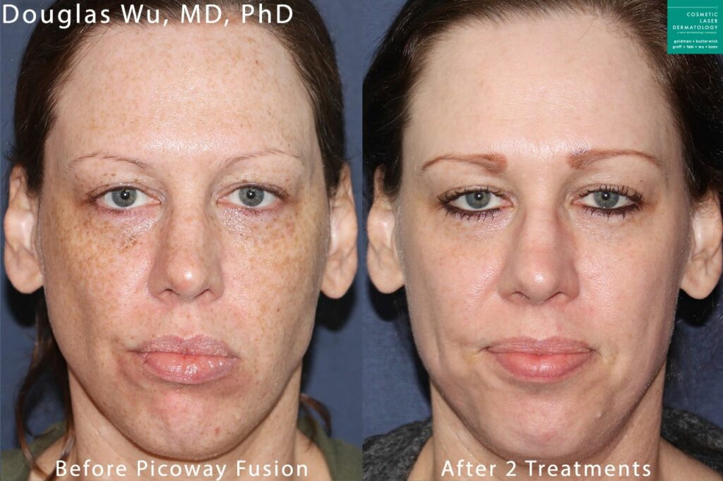 Two treatments with PicoWay Fusion laser to treat brown spots by Dr. Wu. Disclaimer: Results may vary from patient to patient. Results are not guaranteed.