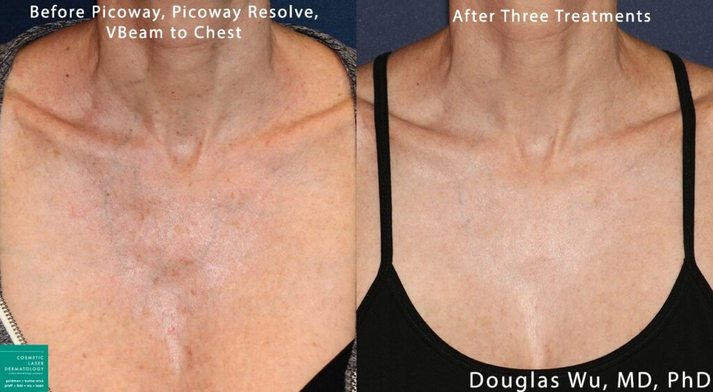 PicoWay, Resolve, and Vbeam lasers used to treat sun damage on chest by Dr. Wu. Disclaimer: Results may vary from patient to patient. Results are not guaranteed.